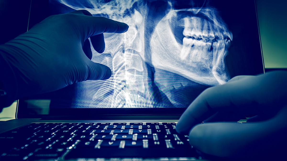 Healthcare data breach fears after US orthopedic clinic leaves patient records on insecure server